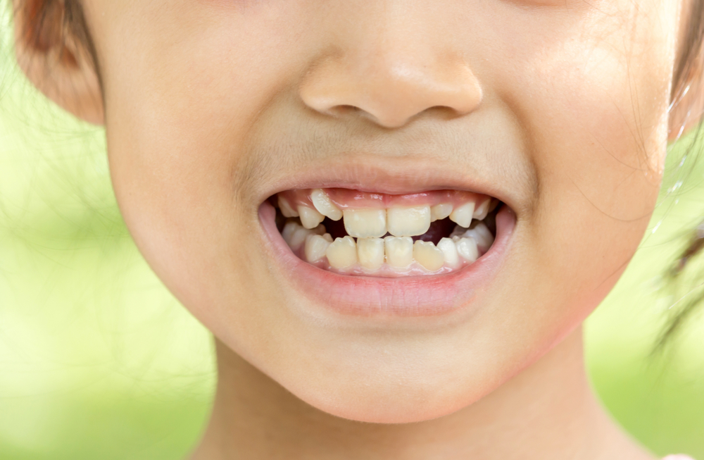 child tooth misalignment headaches
